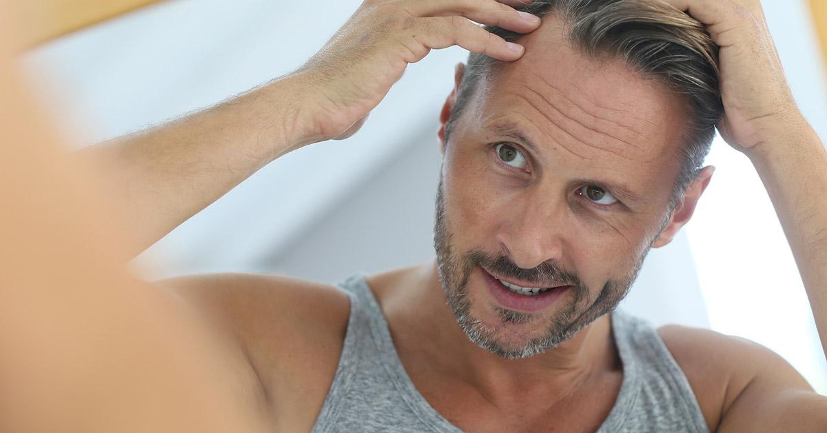 Diradamento dei capelli: cause e rimedi naturali per combattere il problema